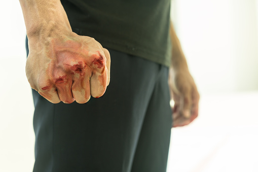 A deputy will be tried for beating a subordinate in Yakutia